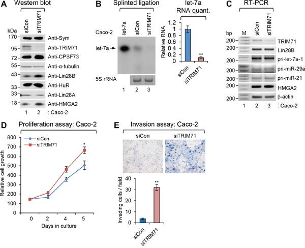 Depletion of TRIM71 promotes proliferation and invasion of colorectal carcinoma Caco-2 cells.