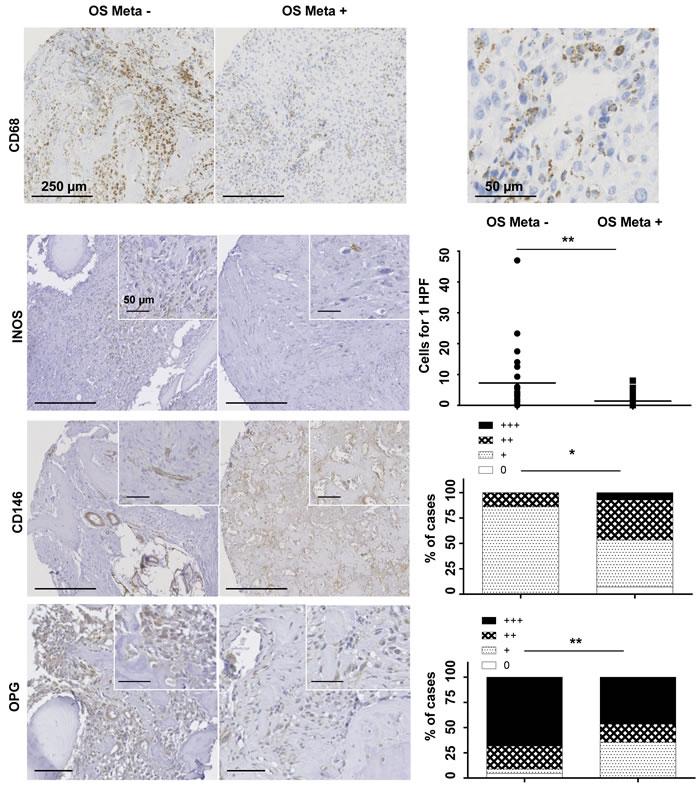 Oncotarget | Dysregulation of macrophage polarization is