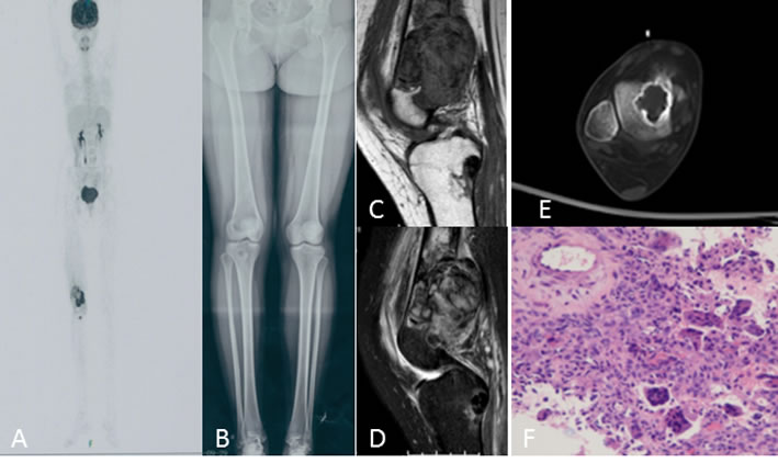 A 20-year-old woman with right knee swelling and pain.