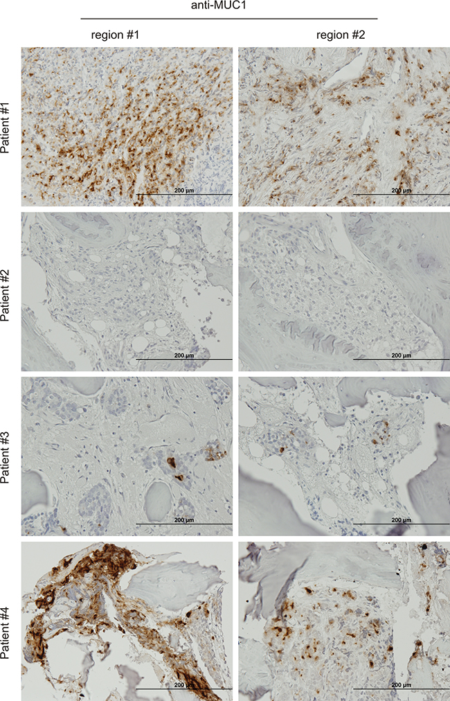 Expression of MUC1 in bone PC metastases.