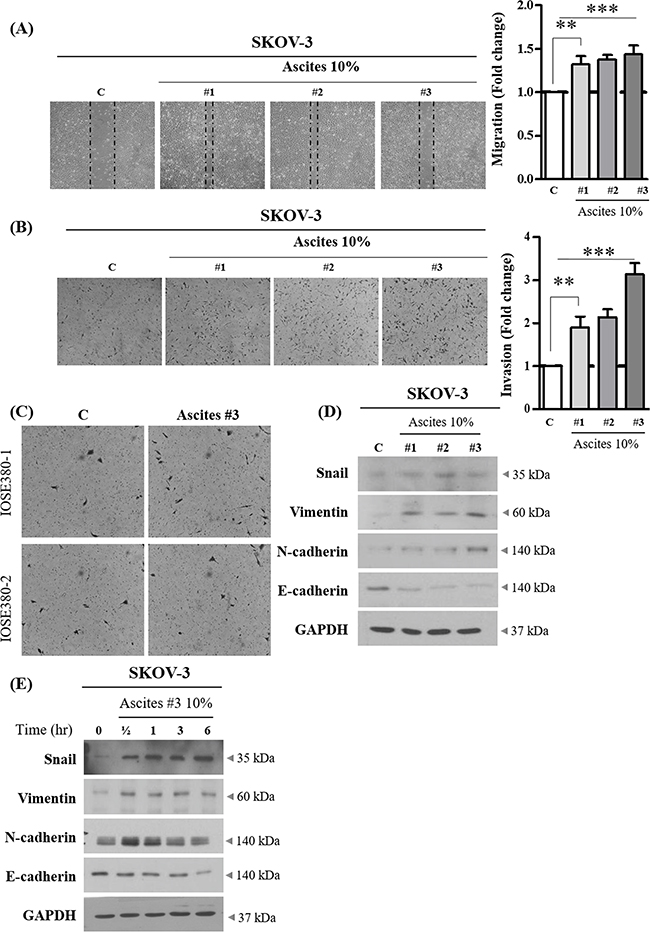 Effect of ovarian cancer patient derived ascites on SKOV-3 cell migration and invasion.