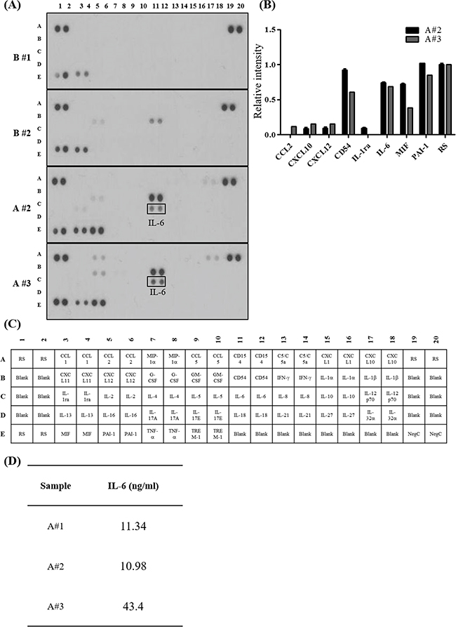 Pro-inflammatory cytokines enriched in ovarian cancer patient derived ascites.