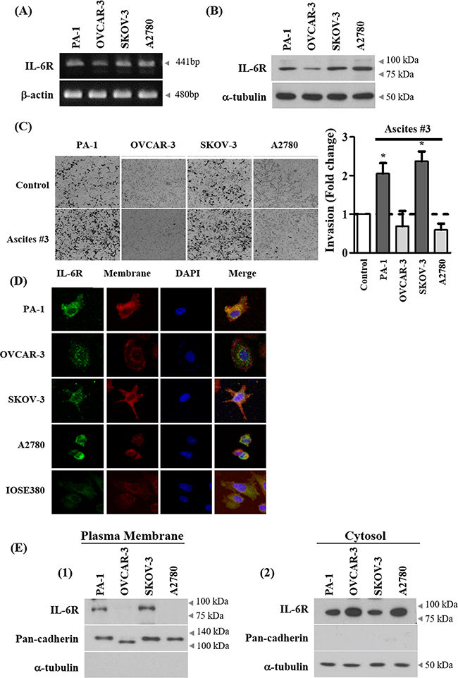 Expression of IL-6R on cell membrane correlates with ascites-induced invasion.