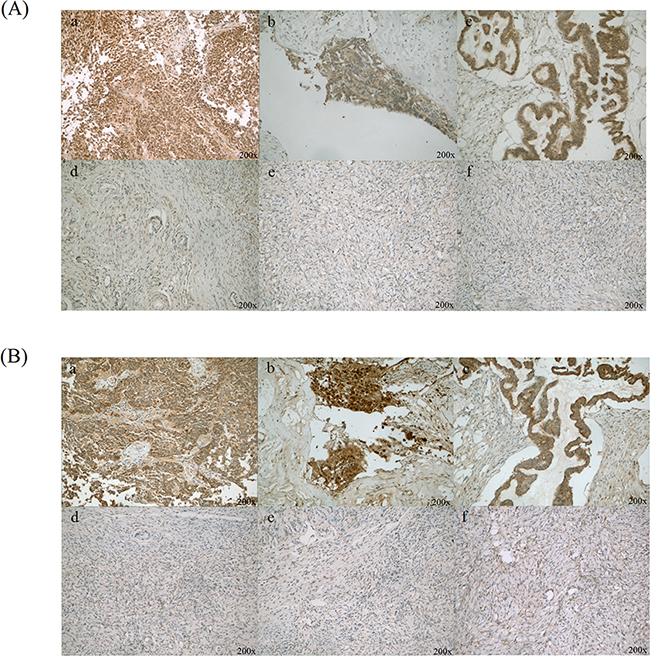 Immunohistochemical staining of CLIC1 and LGALS3BP in ovarian cancer and normal ovary tissues.