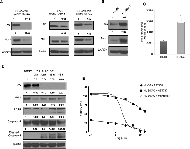 AC activity regulates expression of pro-survival Mcl-1 protein and confers resistance to Bcl-2 inhibition.
