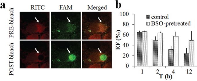 FRET images on the MCF-7 cells incubated with RITC-labelled CS-ss-SA/FAM-siRNA complexes.