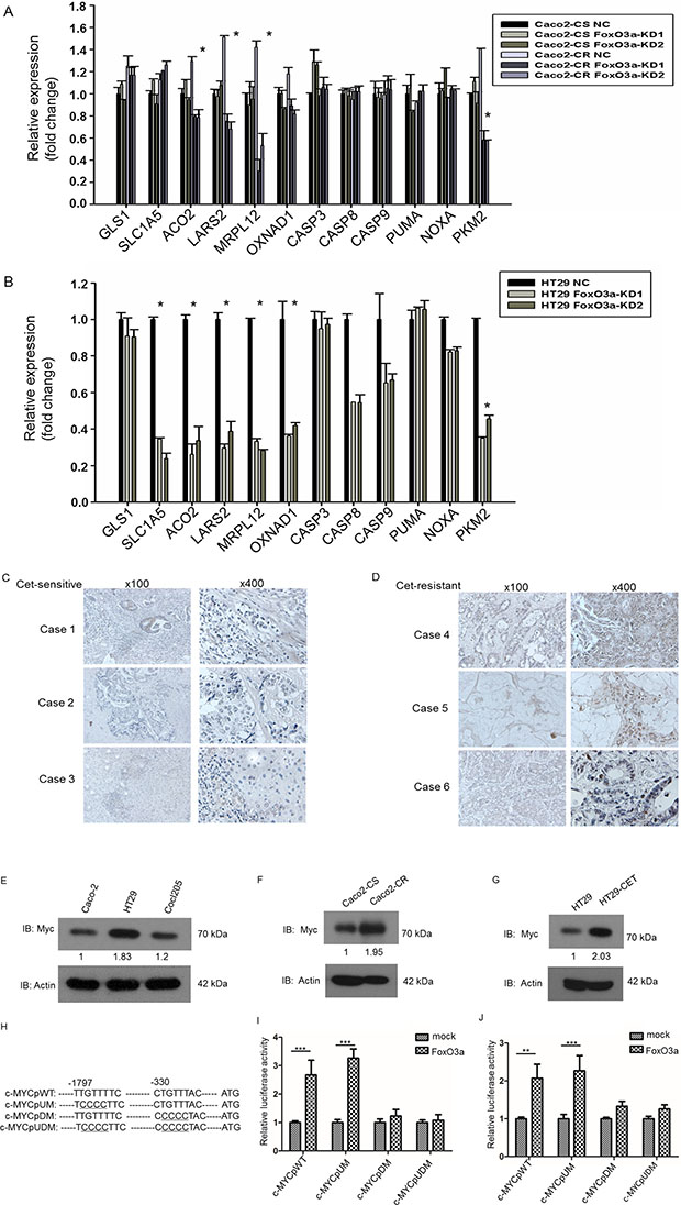 FoxO3a knockdown reduced metabolic genes expression in cetuximab resistant CRC cells and FoxO3a interacted with c-Myc in cetuximab resistant CRC cells.