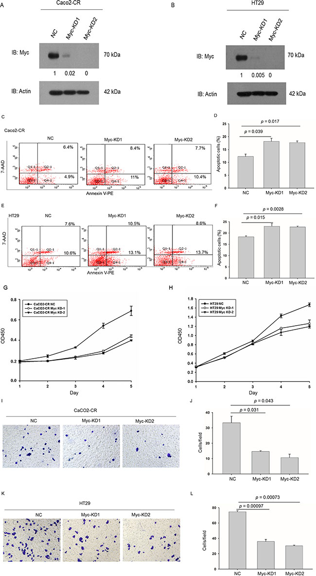 Knockdown of c-Myc sensitized CRC-CR cells to cetuximab treatment and inhibited cell proliferation and migration ability in cetuximab resistant CRC cells.