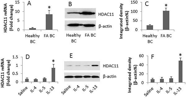 IL-13 increases HDAC11 in B cells.