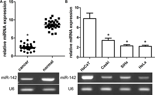 Relative expression of miR-142 in cervical cancer tissues and cell lines as well as its correlation with overall survival of cervical cancer patients.