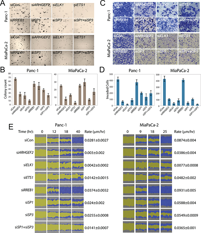 Transcription factors regulating ARHGEF2 mediate RAS transformed phenotypes.