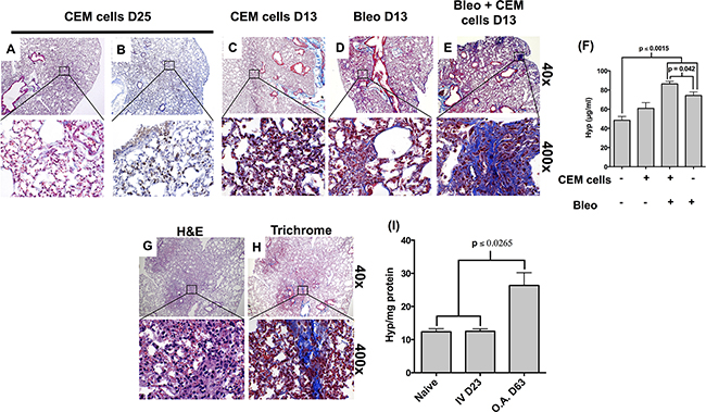 Figure 2. CCRF-CEM cells induce pulmonary remodeling in SCID mice.