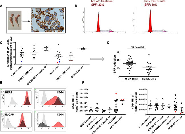 Trastuzumab resistance in ex vivo expanded DTC from the bone marrow is associated with increased CD44 expression in SK-BR-3-transplanted NSG.