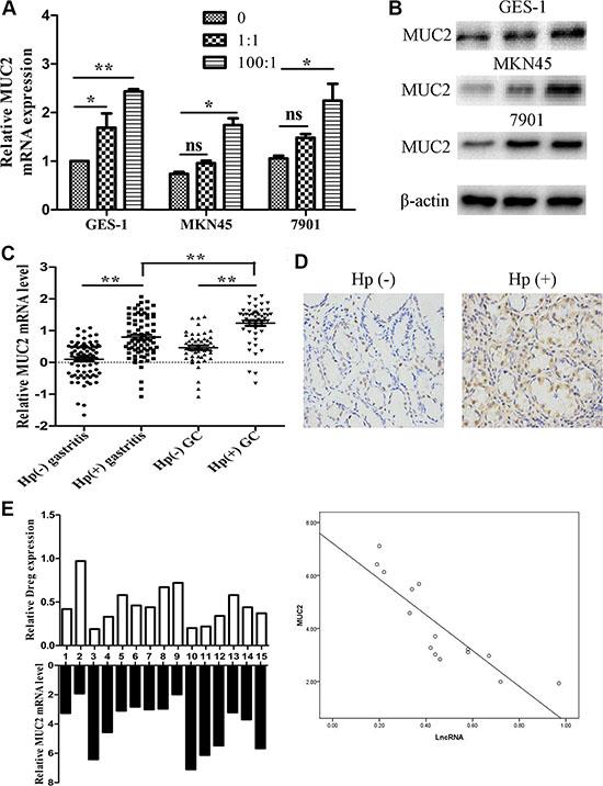 MUC2 expression under H. pylori infected state.