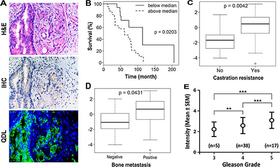 KRT13 expression in prostate cancer correlates with the progression and overall survival of prostate cancer patients.