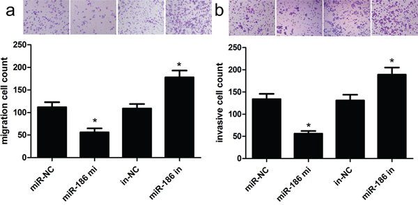 Overexpression of miR-186 could inhibit HGC-27 cell invasion and migration.
