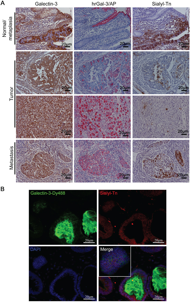 Expression of sialyl-Tn and galectin-3-binding sites in human gastric tumors