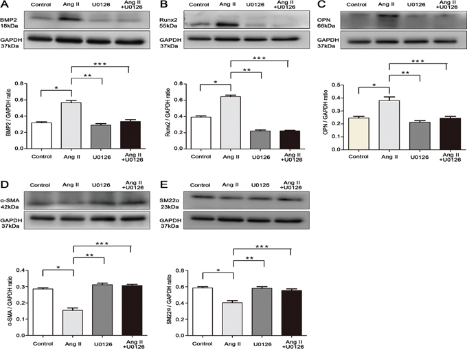 Apocynin attenuated VSMCs calcification via inhibiting ERK1/2 activation and osteogenic phenotype switching.