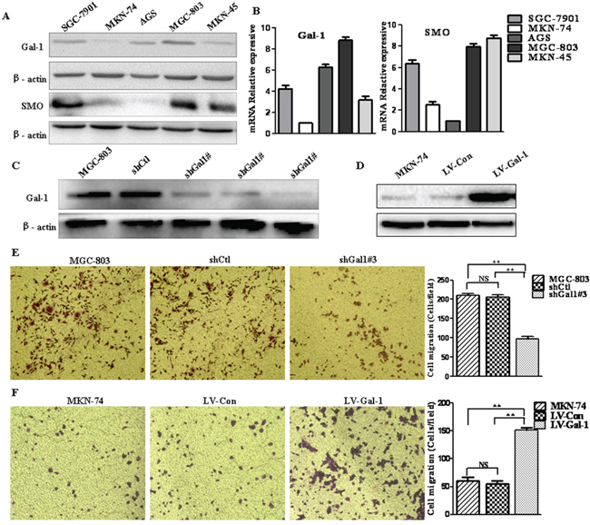 Gal-1 promotes the invasion of human gastric cancer cells.