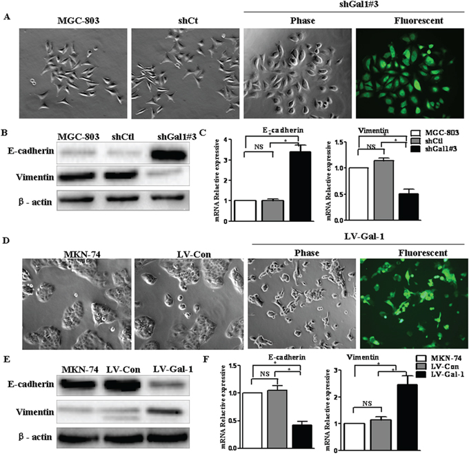 Gal-1 regulates the transition between epithelial and mesenchymal phenotypes in human gastric cancer cells.