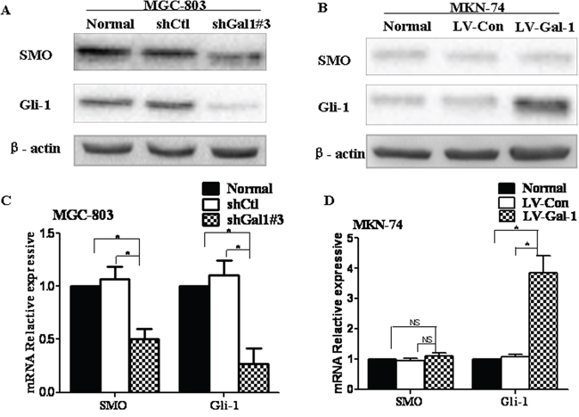 Gal-1 is associated with the Hedgehog pathway in human gastric cancer cells.