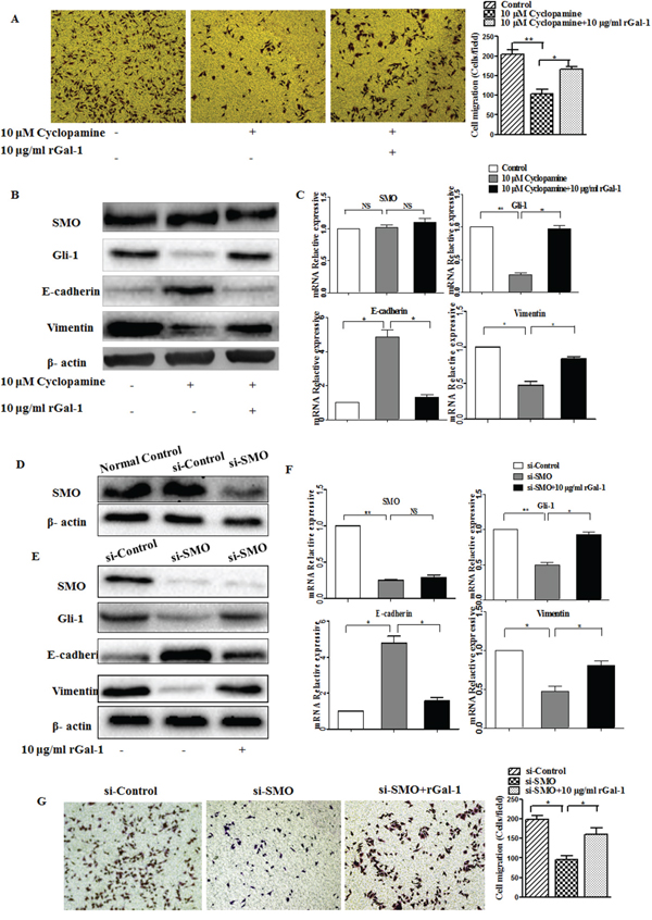 The effects of cyclopamine and the SMO siRNA on Gal-1-induced gastric cancer cell invasion and EMT.