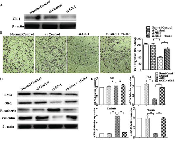 Gli-1 siRNA abolishes Gal-1-mediated invasion and EMT in gastric cancer cells.