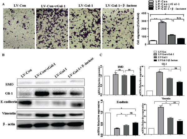 The effects of β-lactose on Gal-1-induced gastric cancer cell invasion and the EMT.