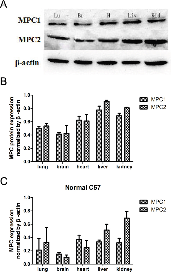 MPC1 and MPC2 expressions in multiple organs and Western blotting results.