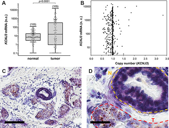 KCNJ3 mRNA levels are higher in tumor than in surrounding normal tissue.