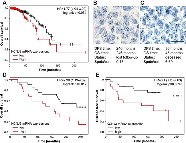 Estrogen receptor positive patients with high KCNJ3 mRNA levels in their tumor have a worse overall and disease free survival probability.