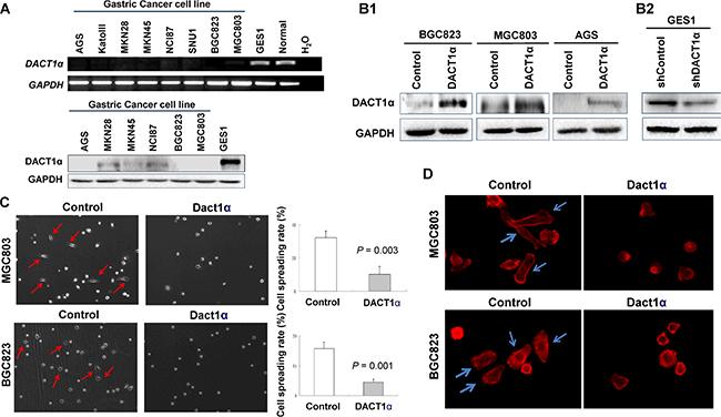Oncotarget | Dapper homolog 1 alpha suppresses metastasis