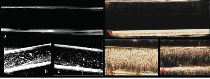 Two-dimensional ultrasonic imaging and ultrasound contrast enhanced imaging of UCAs in vitro.