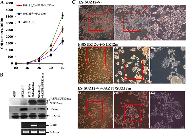 Expression of fusion protein JAZF1-SUZ12 does not rescue the neuronal differentiation of Suz12 (−/−) ES cells.