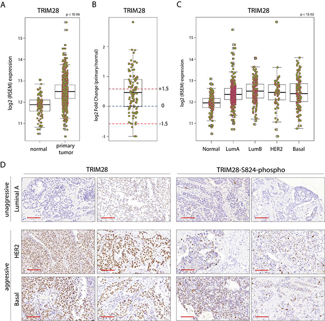 TRIM28 gene is overexpressed in breast cancer.