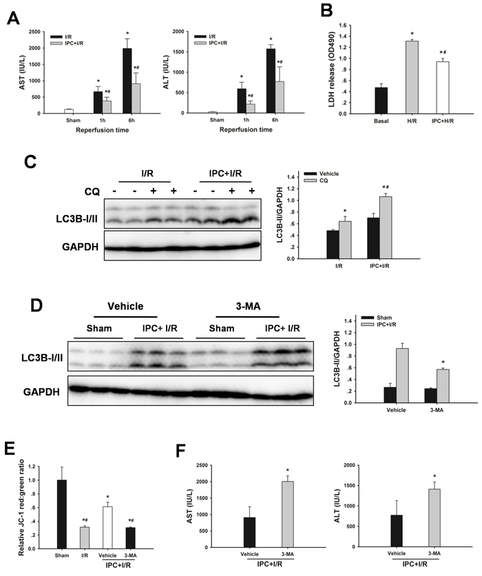 IPC restores autophagic flux in steatotic livers following I/R injury.