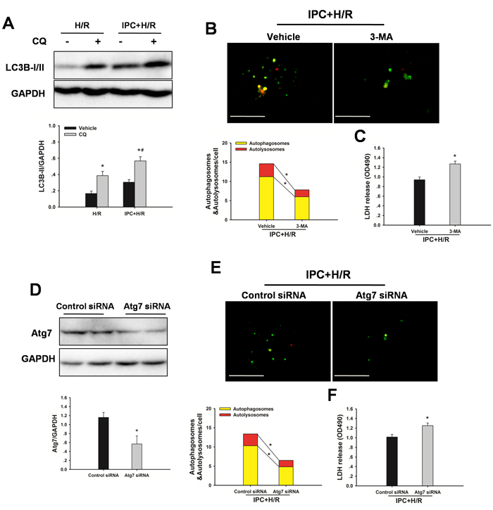 IPC induces autophagic flux following H/R insult.