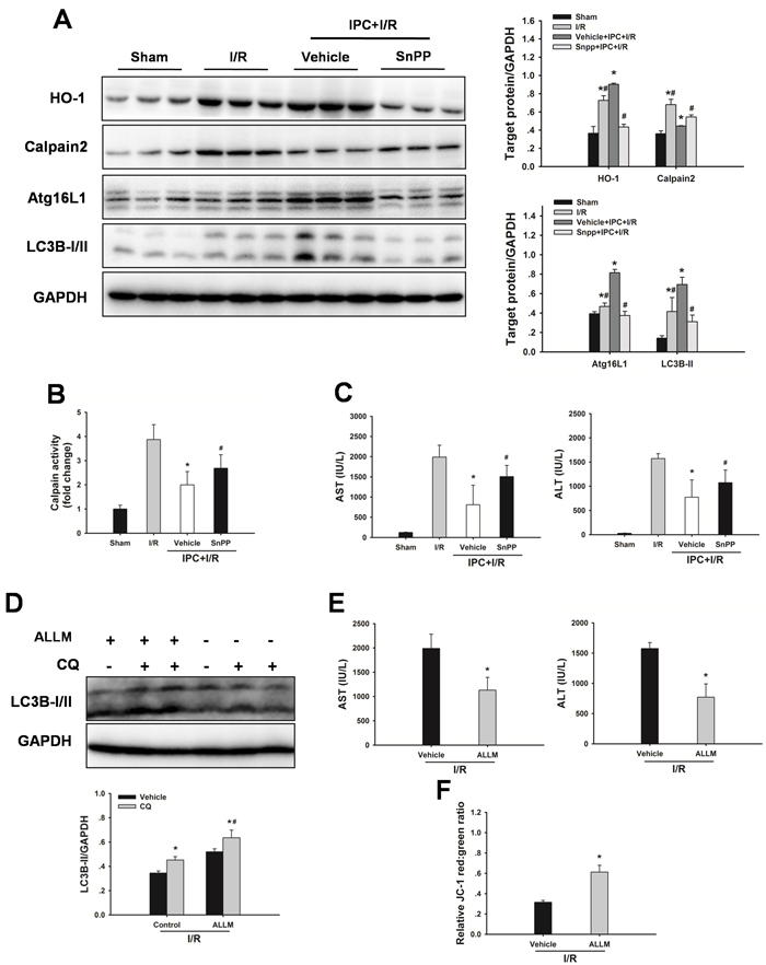 Inhibition of HO-1 by SnPP attenuates the IPC-induced hepatoprotection.
