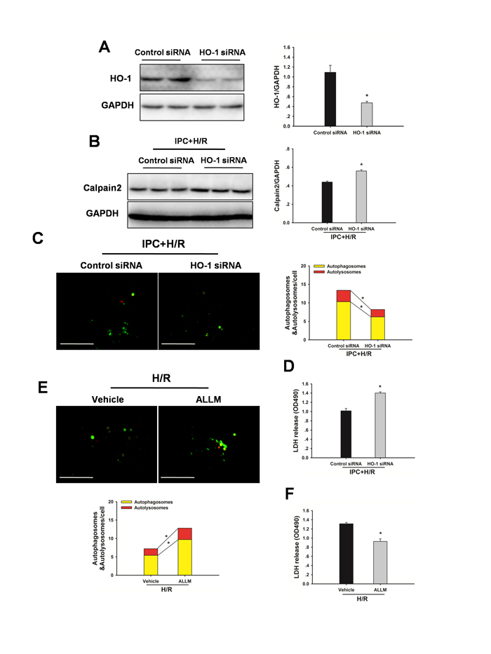 Inhibition of HO-1 by HO-1 siRNA attenuates the IPC-induced hepatoprotection in vitro.