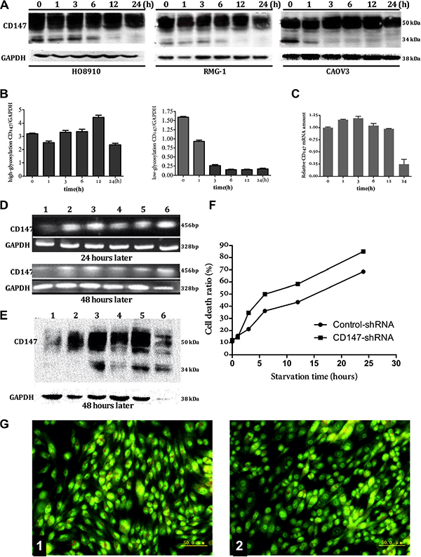 The relationship between expression of CD147 and autophagy.