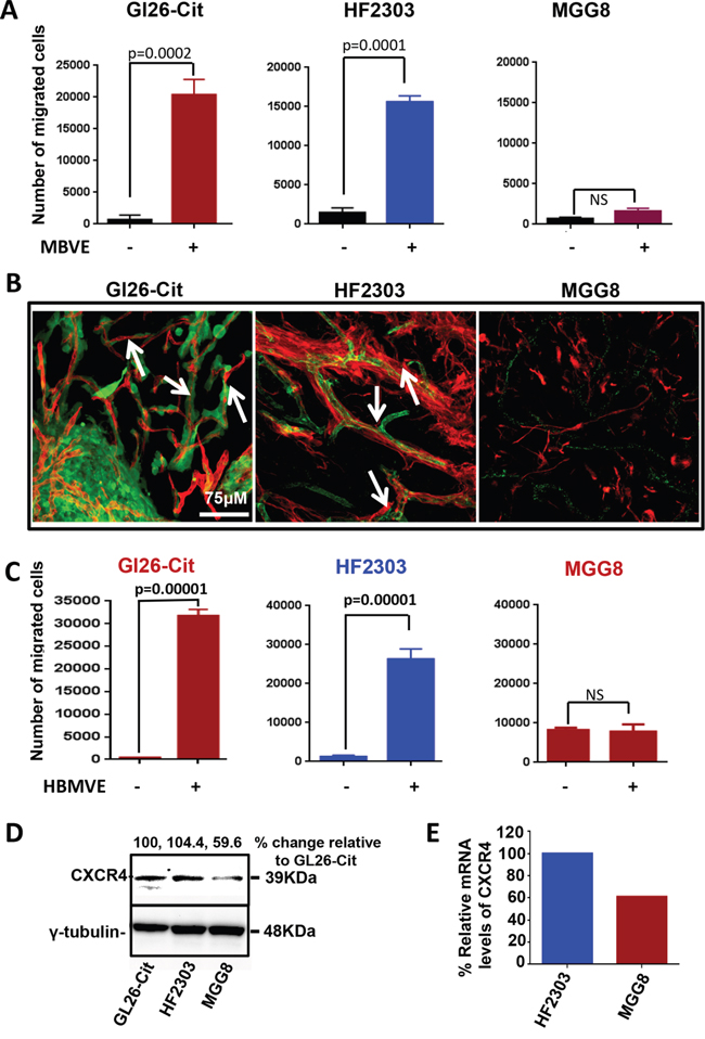Brain-endothelial cells induce migration of GBM tumor cells.