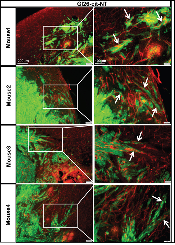 GL26-Cit tumor cells invasion along blood vessels is CXCR4 dependent.