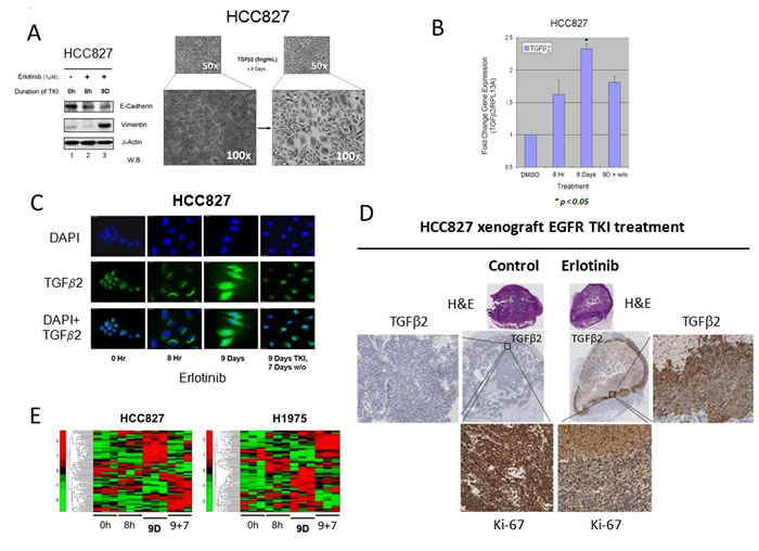 Autocrine TGFβ2 upregulation in lung adenocarcinoma early adaptive drug-escape correlated with EMT and stem cell signaling reprogramming.