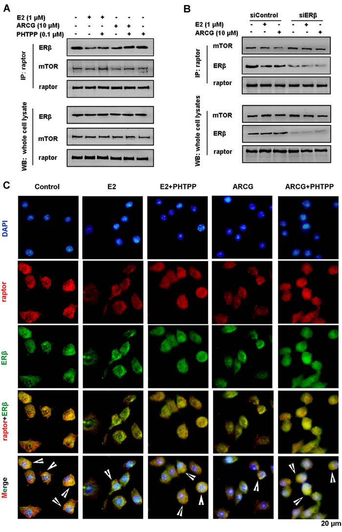 Arctigenin interferences with the formation of ERβ-raptor-mTOR complex in T cells.