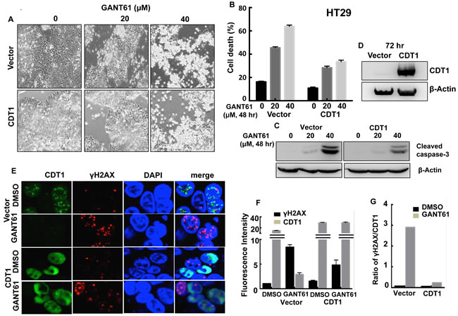 CDT1 overexpression in HT29 cells during exposure to GANT61.