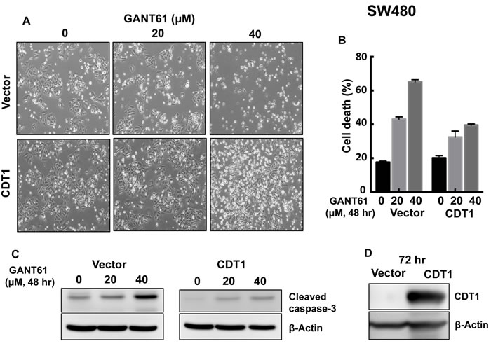 CDT1 overexpression in SW480 cells and treatment with GANT61 were conducted as described in the legend to Figure 9.