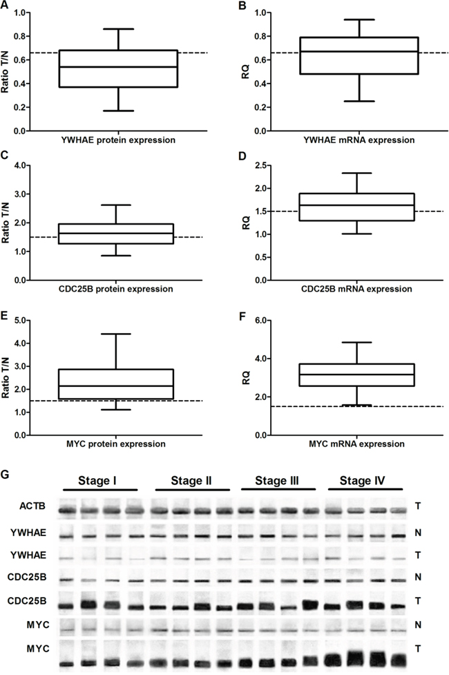 Protein and gene expression in gastric cancer.
