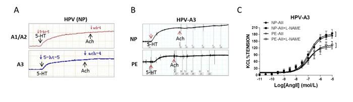 Endothelium-dependent vasodilatation in human placenta.