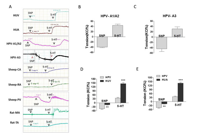 The effect of SNP on placental and non-placental vessels.