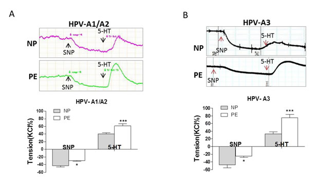 SNP-induced relaxation in preeclamptic placental vessels.